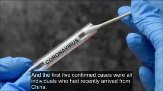 Treatments of the virus in EU - EI05